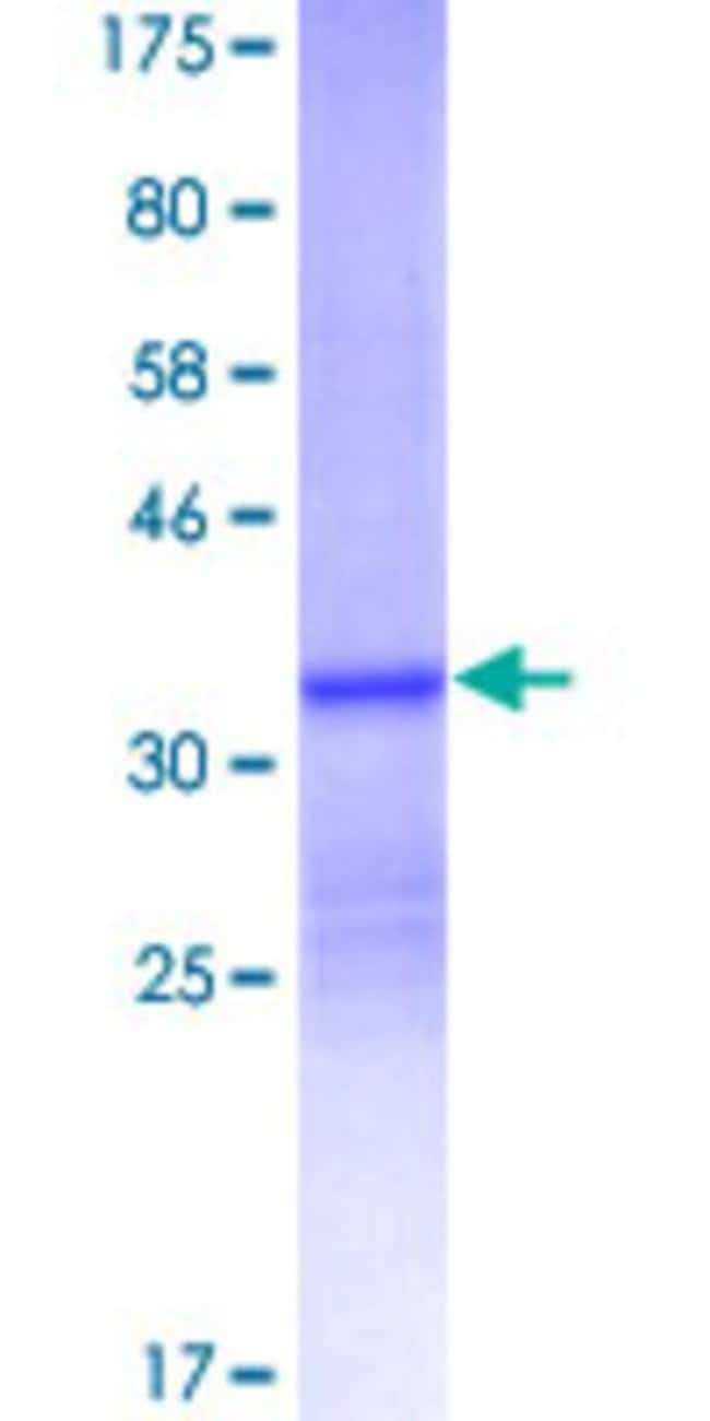 Abnova™Human S100A12 Full-length ORF (NP_005612.1, 1 a.a. - 92 a.a.) Recombinant Protein with GST-tag at N-terminal 10μg Abnova™Human S100A12 Full-length ORF (NP_005612.1, 1 a.a. - 92 a.a.) Recombinant Protein with GST-tag at N-terminal