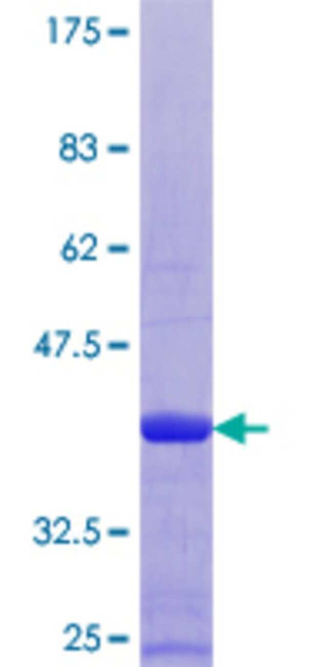 Abnova™Human S100B Full-length ORF (NP_006263.1, 1 a.a. - 92 a.a.) Recombinant Protein MW: 37.1kDa with GST-tag at N-terminal 25μg Abnova™Human S100B Full-length ORF (NP_006263.1, 1 a.a. - 92 a.a.) Recombinant Protein MW: 37.1kDa with GST-tag at N-terminal