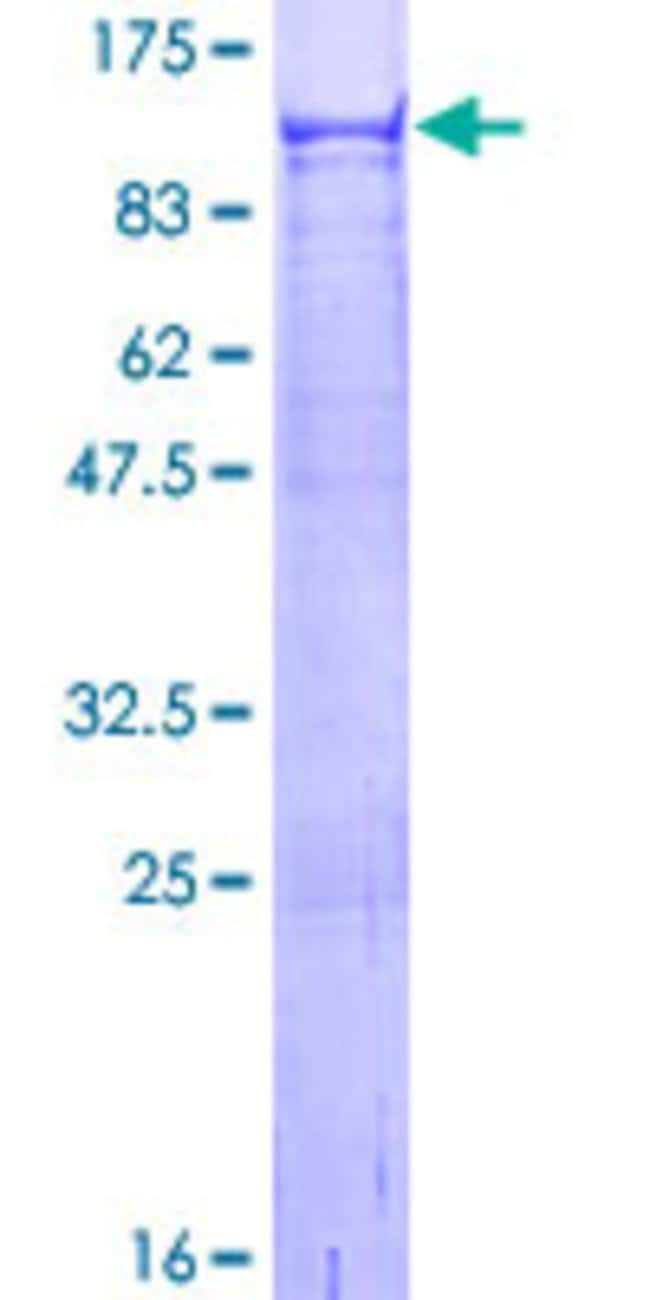 Abnova™Human VPS52 Full-length ORF (NP_072047.4, 1 a.a. - 723 a.a.) Recombinant Protein with GST-tag at N-terminal 10μg Abnova™Human VPS52 Full-length ORF (NP_072047.4, 1 a.a. - 723 a.a.) Recombinant Protein with GST-tag at N-terminal