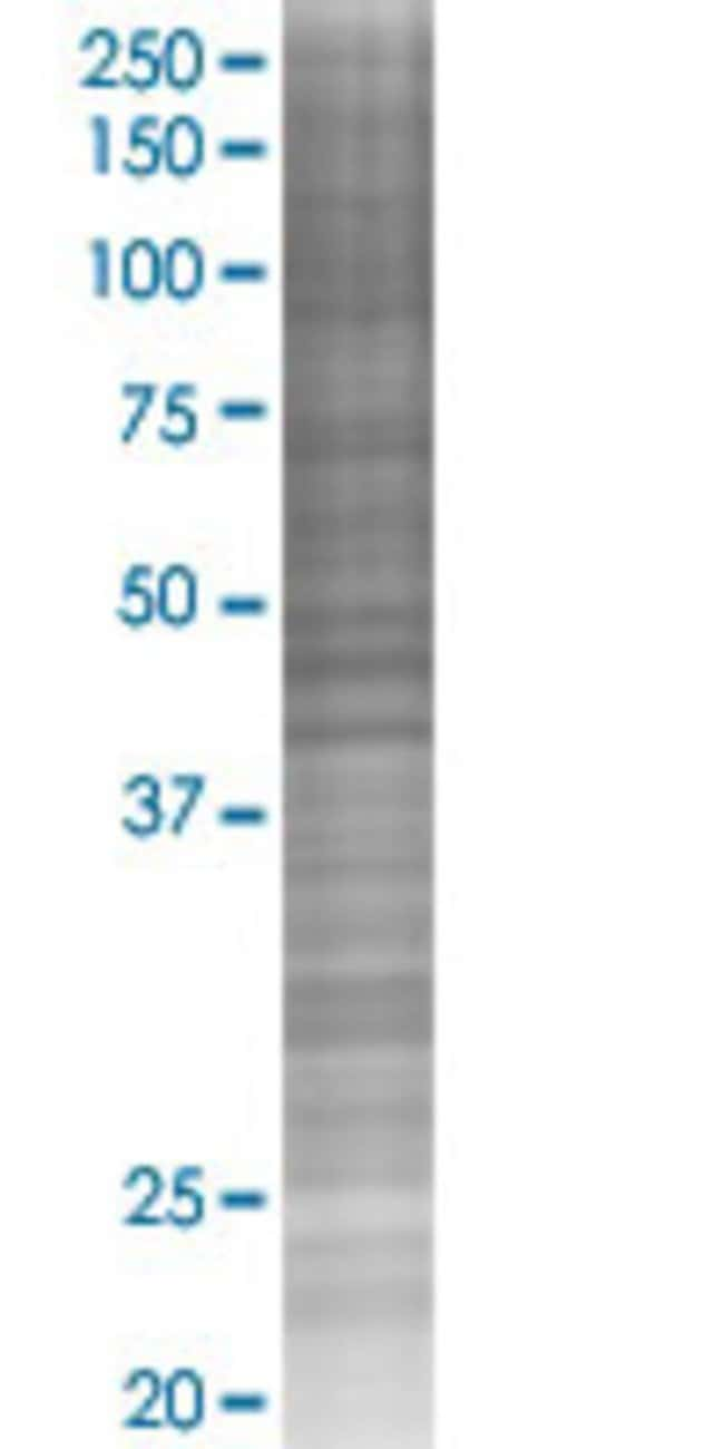 AbnovaACSM3 293T Cell Transient Overexpression Lysate (Denatured) (T02)