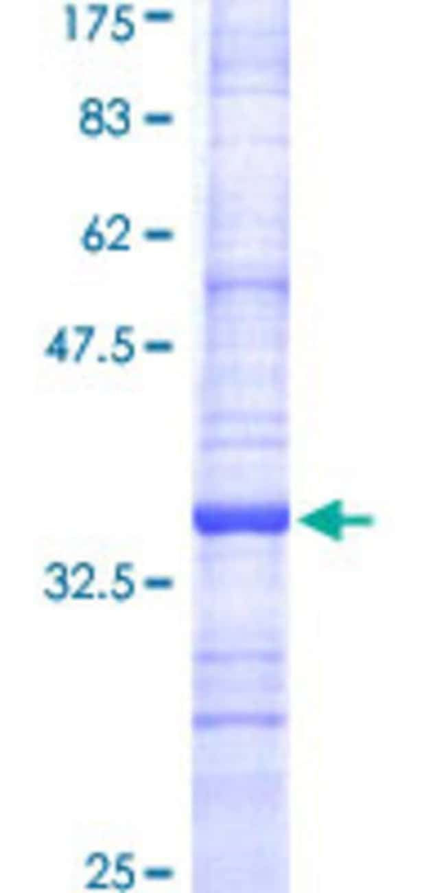 Abnova™Human SAT Partial ORF (NP_002961, 88 a.a. - 171 a.a.) Recombinant Protein with GST-tag at N-terminal 10μg Abnova™Human SAT Partial ORF (NP_002961, 88 a.a. - 171 a.a.) Recombinant Protein with GST-tag at N-terminal