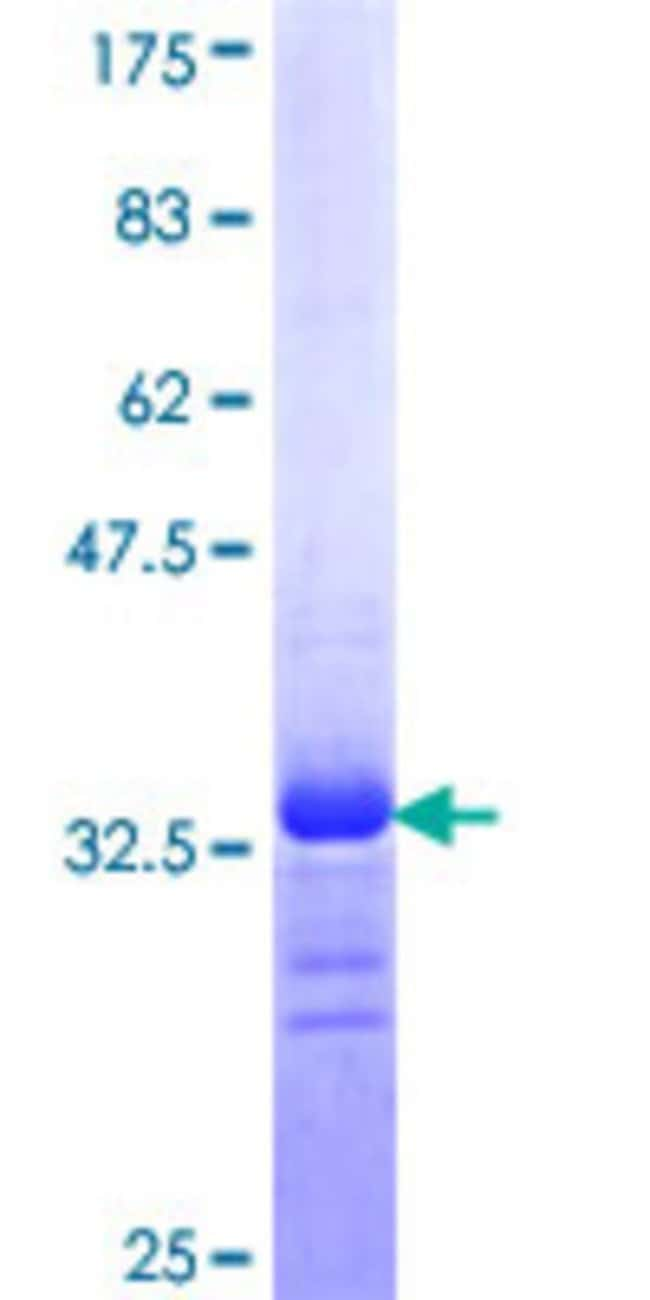 Abnova™Human SCN9A Partial ORF (NP_002968, 269 a.a. - 339 a.a.) Recombinant Protein with GST-tag at N-terminal 25μg Abnova™Human SCN9A Partial ORF (NP_002968, 269 a.a. - 339 a.a.) Recombinant Protein with GST-tag at N-terminal