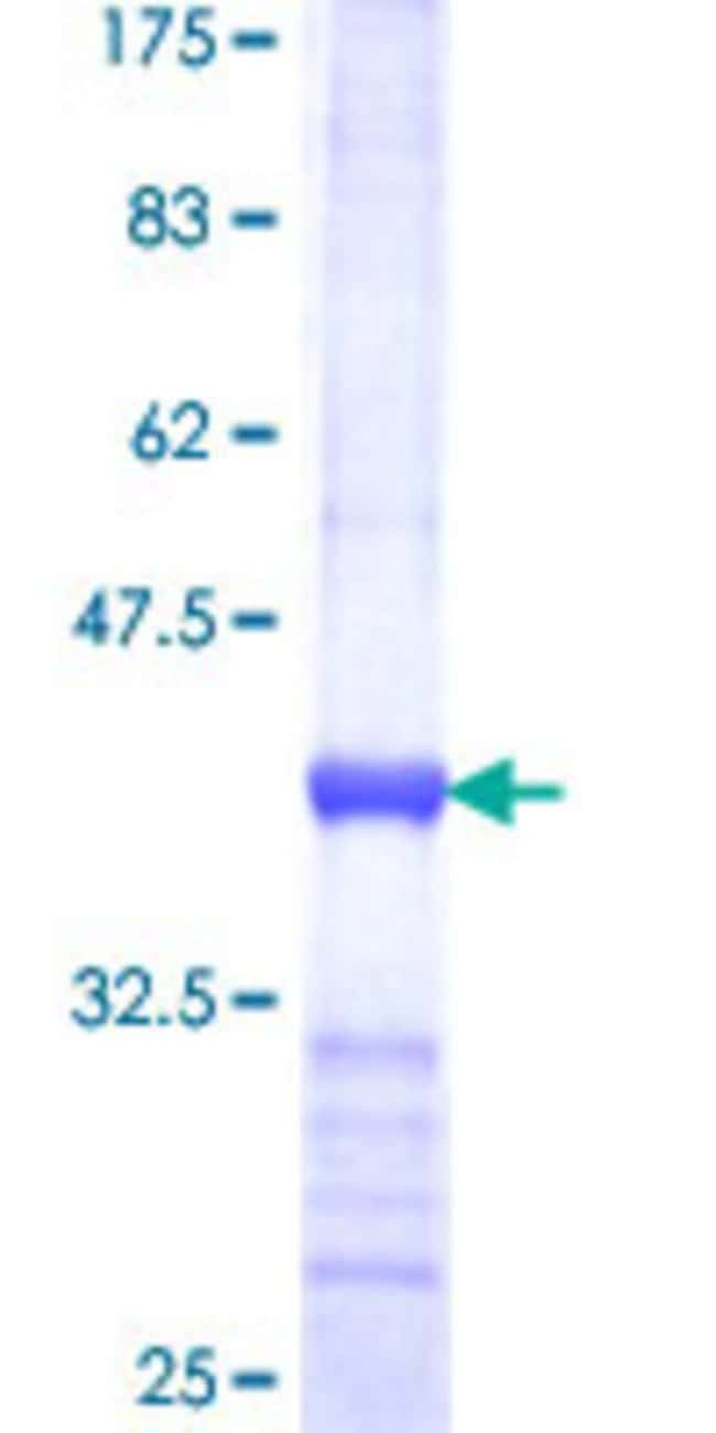 Abnova™ Human SCO1 Partial ORF (NP_004580, 202 a.a. - 301 a.a.) Recombinant Protein with GST-tag at N-terminal 25μg Abnova™ Human SCO1 Partial ORF (NP_004580, 202 a.a. - 301 a.a.) Recombinant Protein with GST-tag at N-terminal