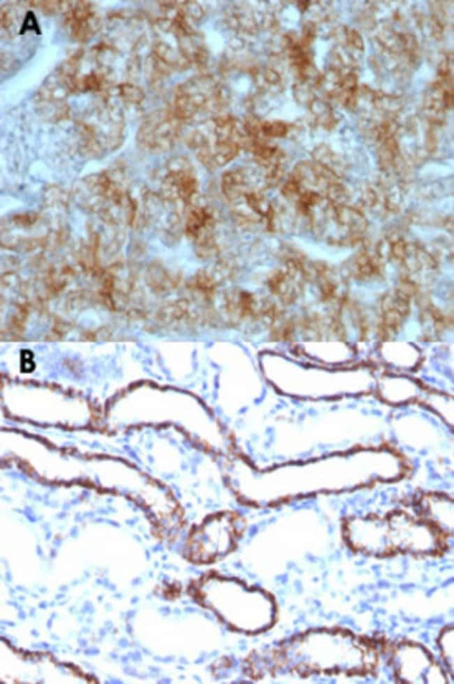 CDH16 Mouse anti-Human, Rat, Clone: CDH16/1071, Abnova 100μg; Unlabeled:Antibodies