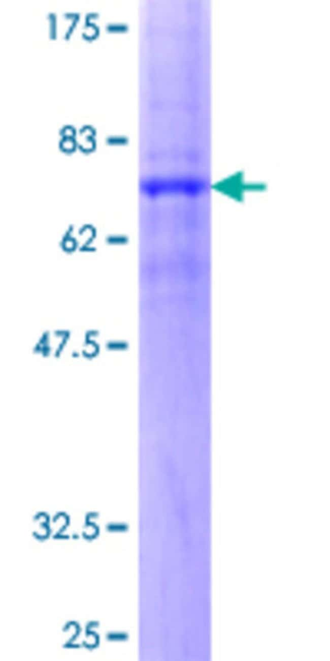 Abnova™ Human SCTR Full-length ORF (AAH35757.2, 1 a.a. - 440 a.a.) Recombinant Protein with GST-tag at N-terminal 25μg Abnova™ Human SCTR Full-length ORF (AAH35757.2, 1 a.a. - 440 a.a.) Recombinant Protein with GST-tag at N-terminal