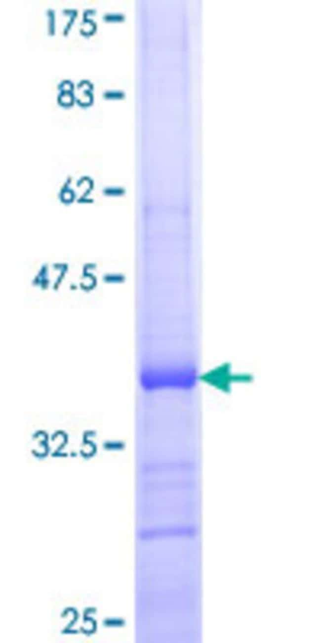 Abnova™Human CCL25 Partial ORF (NP_005615, 24 a.a. - 113 a.a.) Recombinant Protein with GST-tag at N-terminal 10μg Abnova™Human CCL25 Partial ORF (NP_005615, 24 a.a. - 113 a.a.) Recombinant Protein with GST-tag at N-terminal