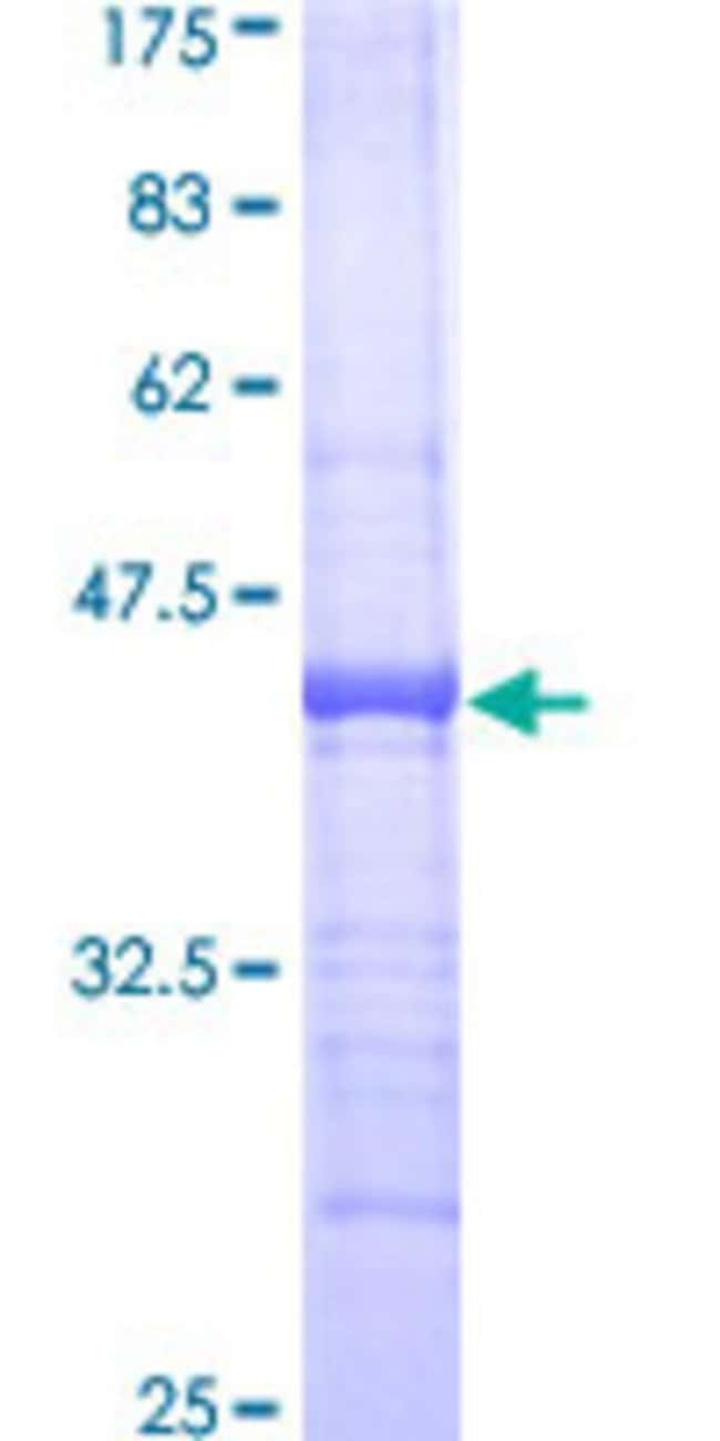 Abnova™Human CX3CL1 Partial ORF (AAH01163, 26 a.a. - 135 a.a.) Recombinant Protein with GST-tag at N-terminal 10μg Abnova™Human CX3CL1 Partial ORF (AAH01163, 26 a.a. - 135 a.a.) Recombinant Protein with GST-tag at N-terminal