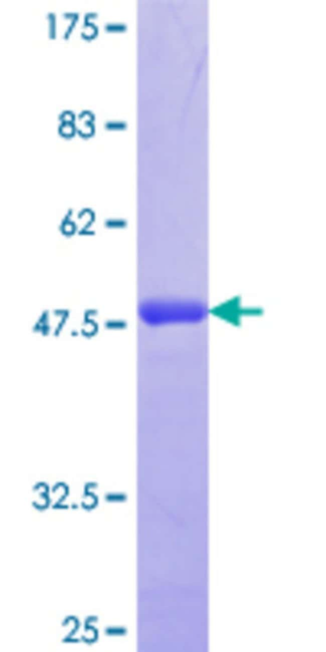 Abnova™Human SDC2 Partial ORF (NP_002989.2, 32 a.a. - 130 a.a.) Recombinant Protein with GST-tag at N-terminal 10μg Abnova™Human SDC2 Partial ORF (NP_002989.2, 32 a.a. - 130 a.a.) Recombinant Protein with GST-tag at N-terminal