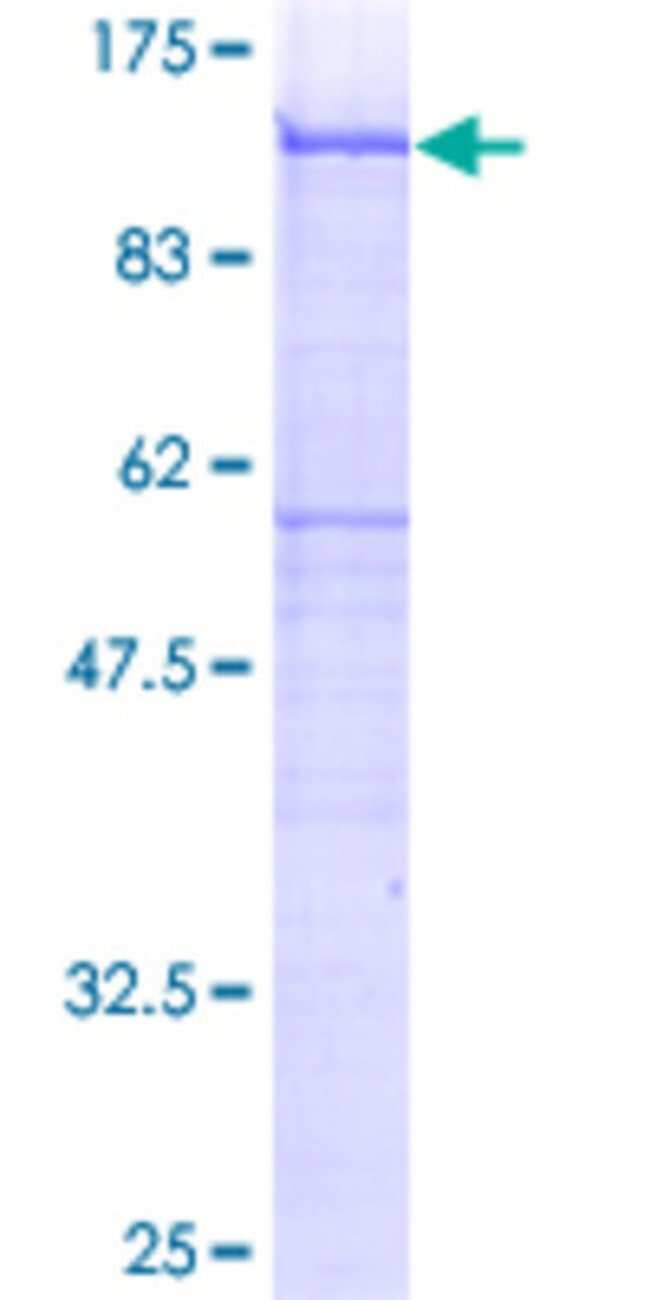 Abnova™Human SDC4 Full-length ORF (AAH30805, 19 a.a. - 198 a.a.) Recombinant Protein with GST-tag at N-terminal 25μg Abnova™Human SDC4 Full-length ORF (AAH30805, 19 a.a. - 198 a.a.) Recombinant Protein with GST-tag at N-terminal