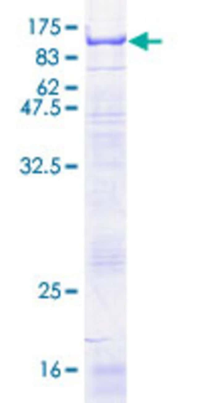Abnova™Human SELE Full-length ORF (NP_000441.1, 1 a.a. - 610 a.a.) Recombinant Protein with GST-tag at N-terminal 25μg Abnova™Human SELE Full-length ORF (NP_000441.1, 1 a.a. - 610 a.a.) Recombinant Protein with GST-tag at N-terminal