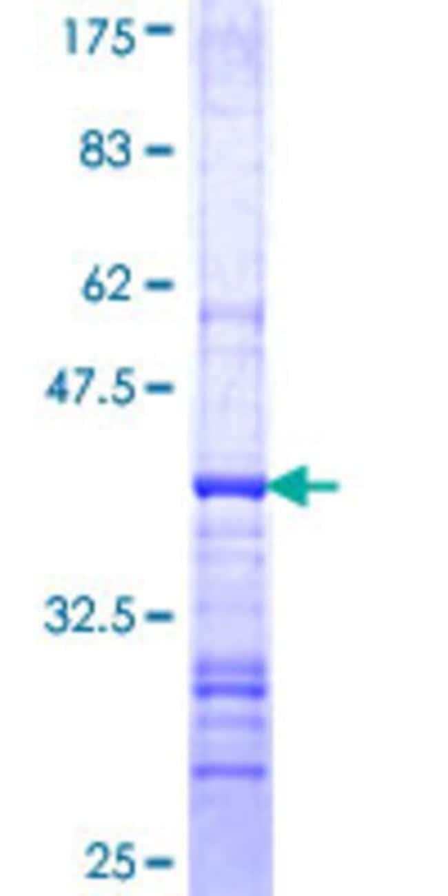 Abnova™Human SGCB Partial ORF (NP_000223, 87 a.a. - 196 a.a.) Recombinant Protein with GST-tag at N-terminal 10μg Abnova™Human SGCB Partial ORF (NP_000223, 87 a.a. - 196 a.a.) Recombinant Protein with GST-tag at N-terminal