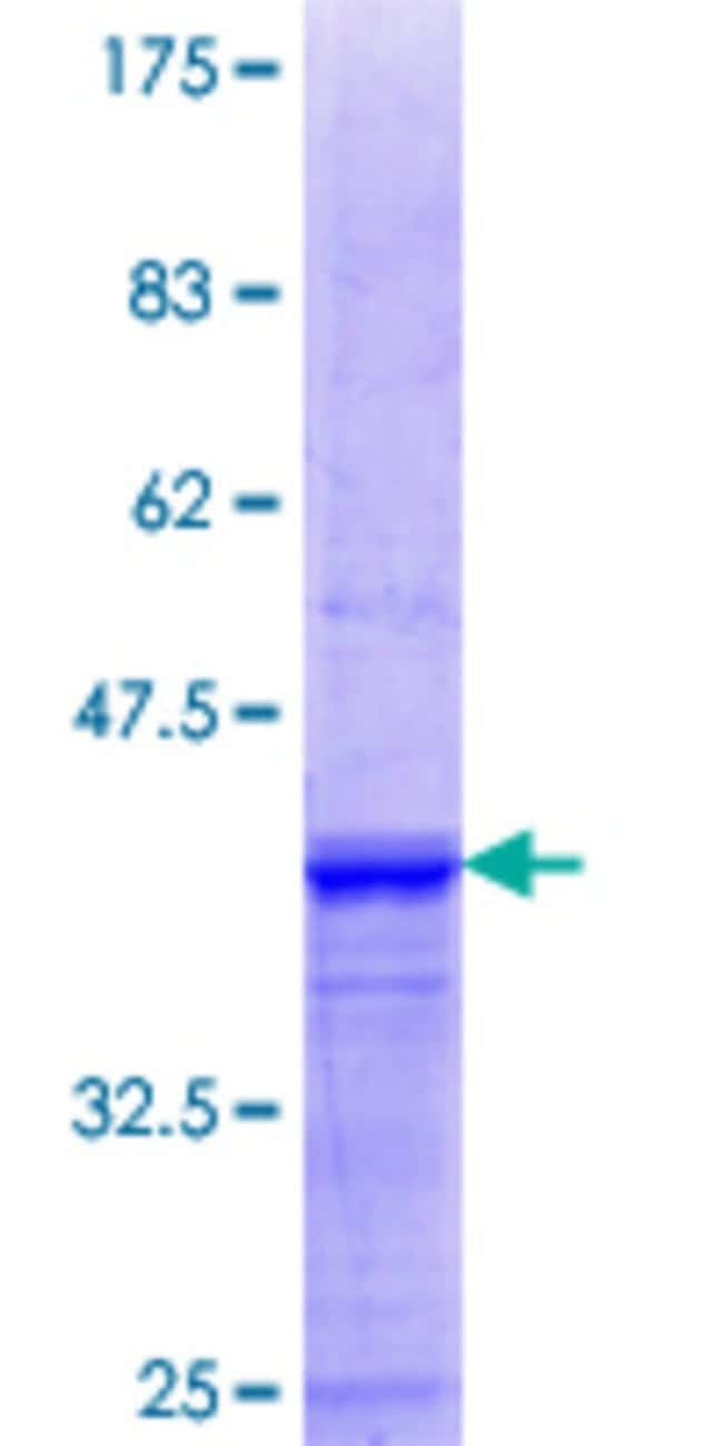 Abnova™Human SGCG Partial ORF (NP_000222.1, 191 a.a. - 290 a.a.) Recombinant Protein with GST-tag at N-terminal 25μg Abnova™Human SGCG Partial ORF (NP_000222.1, 191 a.a. - 290 a.a.) Recombinant Protein with GST-tag at N-terminal