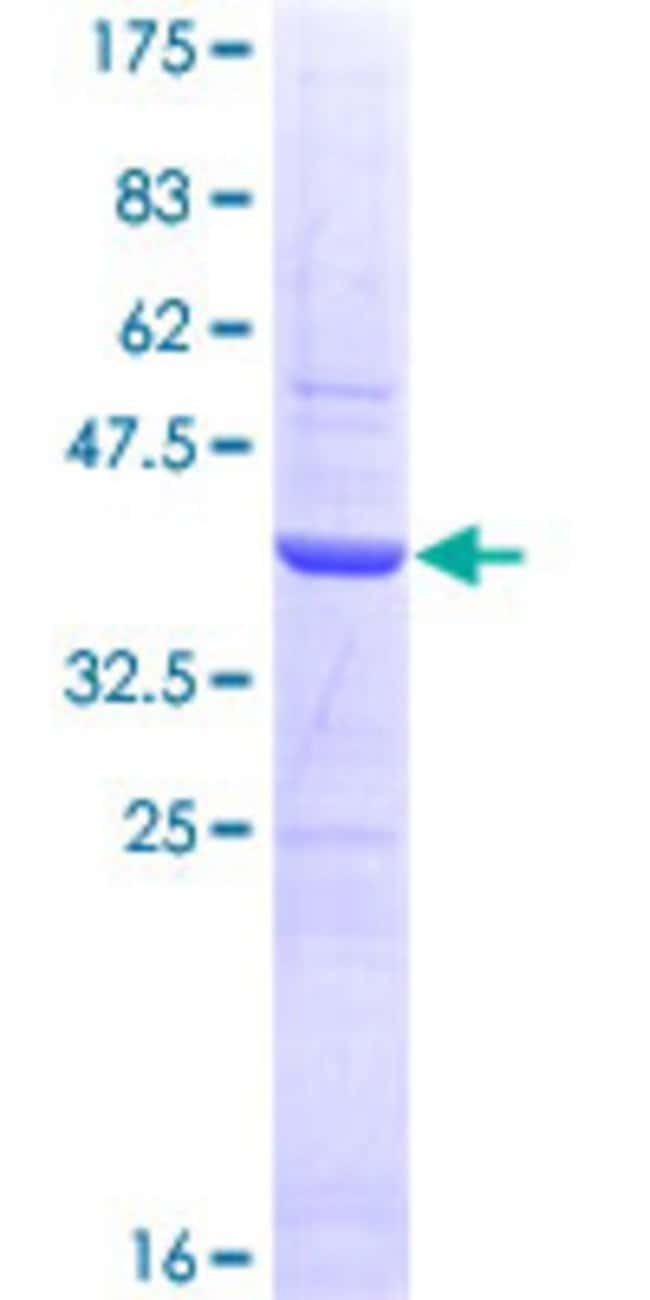 Abnova™Human SHBG Partial ORF (NP_001031, 41 a.a. - 140 a.a.) Recombinant Protein with GST-tag at N-terminal 25μg Abnova™Human SHBG Partial ORF (NP_001031, 41 a.a. - 140 a.a.) Recombinant Protein with GST-tag at N-terminal