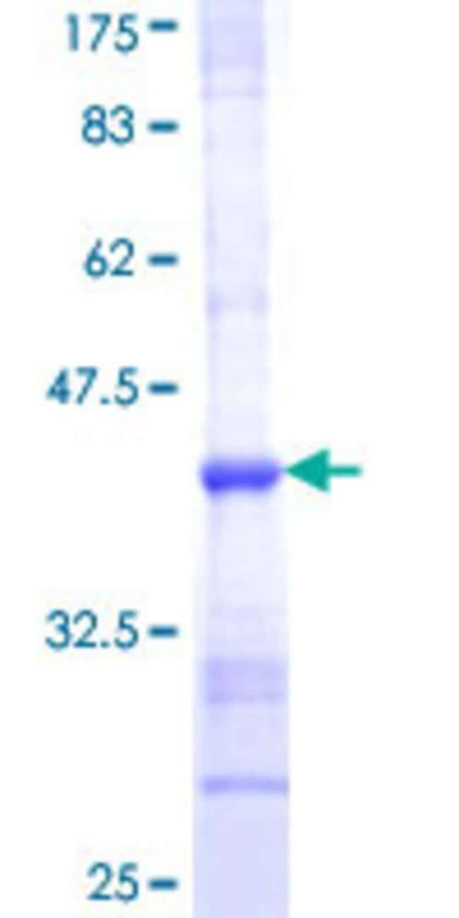 Abnova™ Human SHMT1 Partial ORF (NP_004160, 374 a.a. - 482 a.a.) Recombinant Protein with GST-tag at N-terminal 25μg Abnova™ Human SHMT1 Partial ORF (NP_004160, 374 a.a. - 482 a.a.) Recombinant Protein with GST-tag at N-terminal