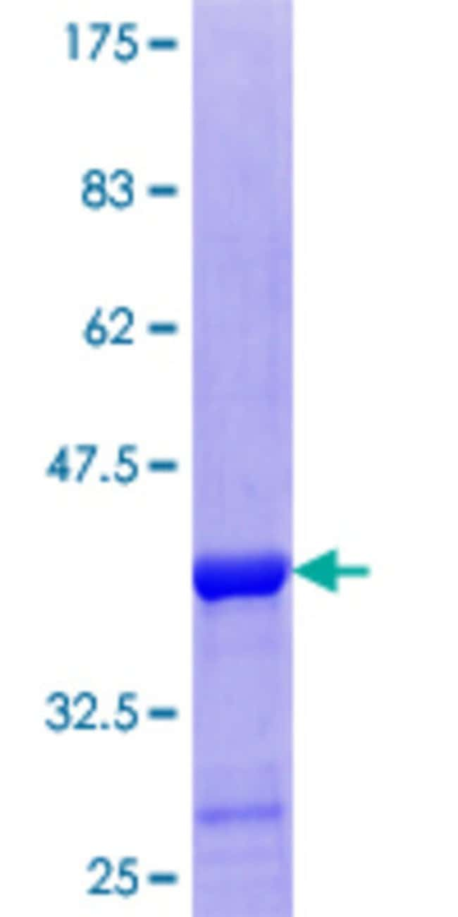 Abnova™Human SHMT2 Partial ORF (NP_005403.2, 401 a.a. - 503 a.a.) Recombinant Protein with GST-tag at N-terminal 25μg Abnova™Human SHMT2 Partial ORF (NP_005403.2, 401 a.a. - 503 a.a.) Recombinant Protein with GST-tag at N-terminal