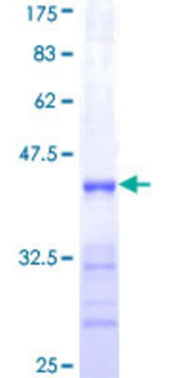 Abnova™Human SHOX2 Partial ORF (NP_006875, 117 a.a. - 204 a.a.) Recombinant Protein with GST-tag at N-terminal 10μg Abnova™Human SHOX2 Partial ORF (NP_006875, 117 a.a. - 204 a.a.) Recombinant Protein with GST-tag at N-terminal