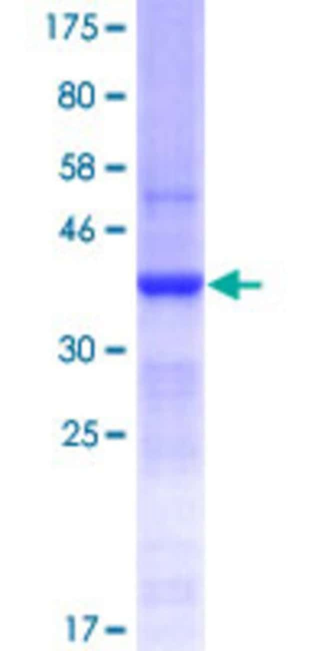Abnova™Human SI Partial ORF (NP_001032, 1728 a.a. - 1826 a.a.) Recombinant Protein with GST-tag at N-terminal 10μg Abnova™Human SI Partial ORF (NP_001032, 1728 a.a. - 1826 a.a.) Recombinant Protein with GST-tag at N-terminal