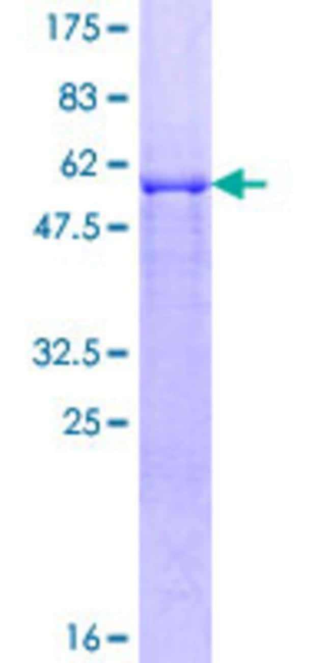 Abnova™Human SIAH2 Full-length ORF (NP_005058.3, 1 a.a. - 324 a.a.) Recombinant Protein with GST-tag at N-terminal 10μg Abnova™Human SIAH2 Full-length ORF (NP_005058.3, 1 a.a. - 324 a.a.) Recombinant Protein with GST-tag at N-terminal