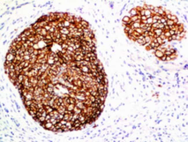 ERBB2 Mouse anti-Human, Clone: ERB2/776, Abnova 100μg; Unlabeled:Antibodies