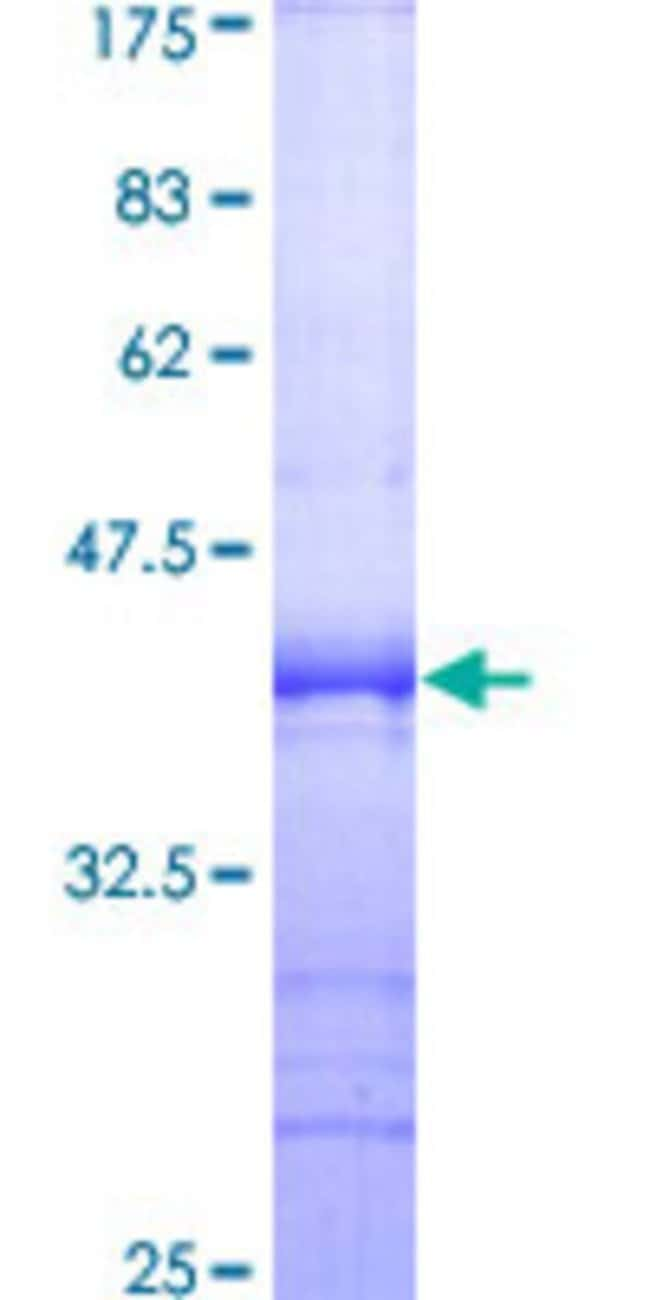 Abnova™Human SIPA1 Partial ORF (AAH10492, 933 a.a. - 1042 a.a.) Recombinant Protein with GST-tag at N-terminal 10μg Abnova™Human SIPA1 Partial ORF (AAH10492, 933 a.a. - 1042 a.a.) Recombinant Protein with GST-tag at N-terminal