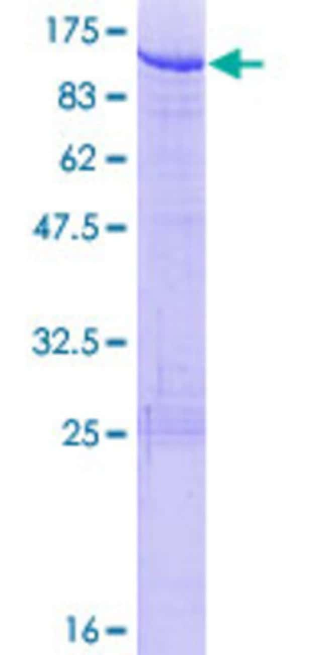 Abnova™ Human SKIL Full-length ORF (NP_005405.1, 1 a.a. - 684 a.a.) Recombinant Protein with GST-tag at N-terminal 10μg Abnova™ Human SKIL Full-length ORF (NP_005405.1, 1 a.a. - 684 a.a.) Recombinant Protein with GST-tag at N-terminal