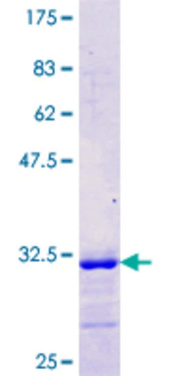 Abnova™Human SLC2A3 Partial ORF (NP_008862.1, 213 a.a. - 263 a.a.) Recombinant Protein with GST-tag at N-terminal 10μg Abnova™Human SLC2A3 Partial ORF (NP_008862.1, 213 a.a. - 263 a.a.) Recombinant Protein with GST-tag at N-terminal