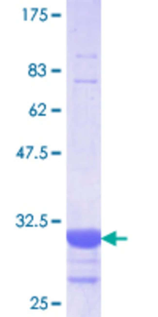 Abnova™Human SLC5A2 Partial ORF (NP_003032.1, 228 a.a. - 277 a.a.) Recombinant Protein with GST-tag at N-terminal 25μg Abnova™Human SLC5A2 Partial ORF (NP_003032.1, 228 a.a. - 277 a.a.) Recombinant Protein with GST-tag at N-terminal