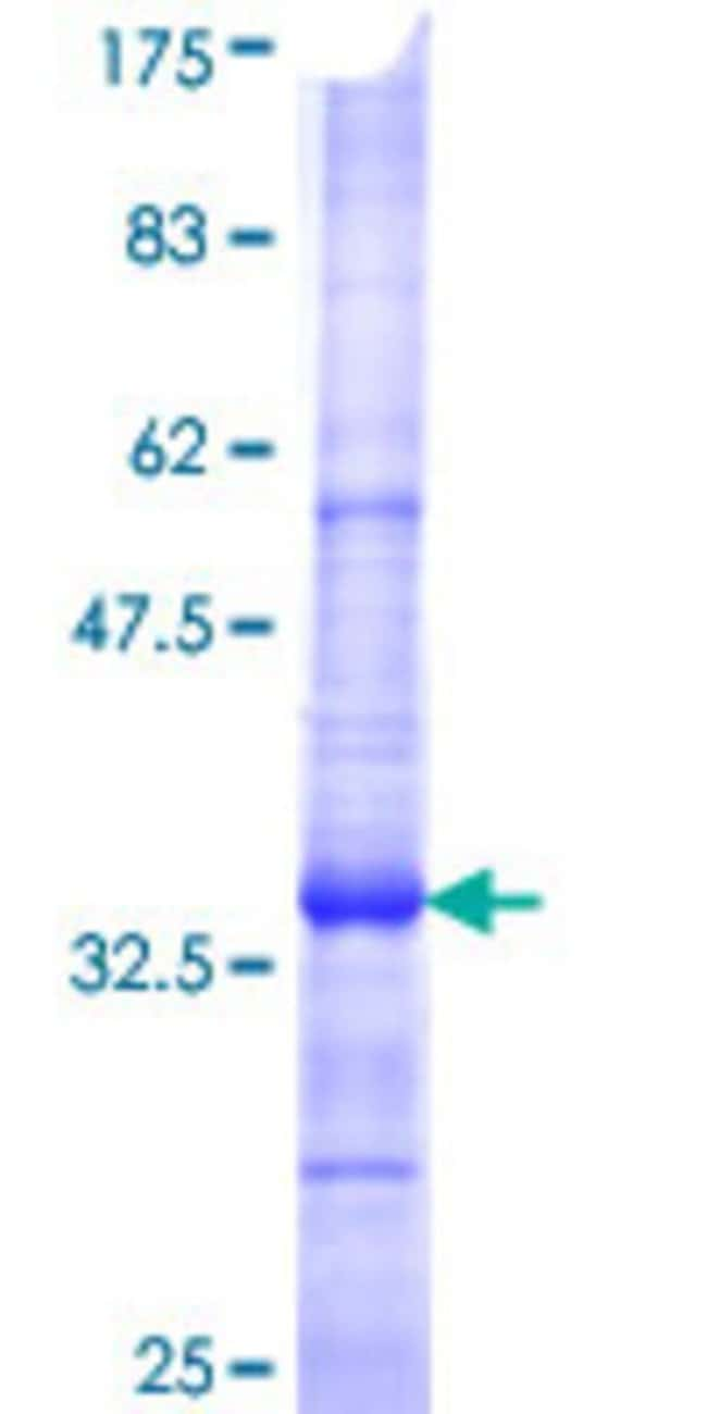 Abnova™Human SLC6A3 Partial ORF (NP_001035, 161 a.a. - 237 a.a.) Recombinant Protein with GST-tag at N-terminal 10μg Abnova™Human SLC6A3 Partial ORF (NP_001035, 161 a.a. - 237 a.a.) Recombinant Protein with GST-tag at N-terminal