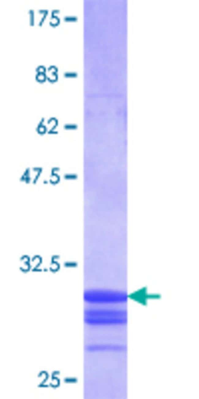 Abnova™Human SLC11A1 Partial ORF (NP_000569.2, 308 a.a. - 350 a.a.) Recombinant Protein with GST-tag at N-terminal 25μg Abnova™Human SLC11A1 Partial ORF (NP_000569.2, 308 a.a. - 350 a.a.) Recombinant Protein with GST-tag at N-terminal