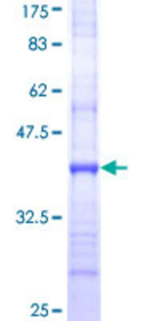 Abnova™Human SLC15A1 Partial ORF (NP_005064, 473 a.a. - 572 a.a.) Recombinant Protein with GST-tag at N-terminal 25μg Abnova™Human SLC15A1 Partial ORF (NP_005064, 473 a.a. - 572 a.a.) Recombinant Protein with GST-tag at N-terminal