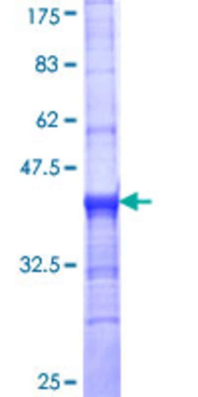 Abnova™Human SLC18A2 Partial ORF (NP_003045, 53 a.a. - 151 a.a.) Recombinant Protein with GST-tag at N-terminal 10μg Abnova™Human SLC18A2 Partial ORF (NP_003045, 53 a.a. - 151 a.a.) Recombinant Protein with GST-tag at N-terminal