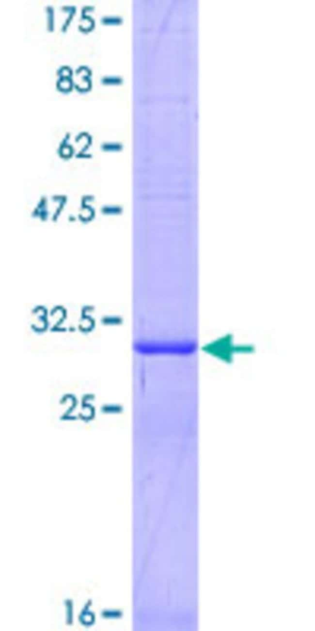 Abnova™ Human SLC22A3 Partial ORF (NP_068812, 90 a.a. - 155 a.a.) Recombinant Protein with GST-tag at N-terminal 10μg Abnova™ Human SLC22A3 Partial ORF (NP_068812, 90 a.a. - 155 a.a.) Recombinant Protein with GST-tag at N-terminal