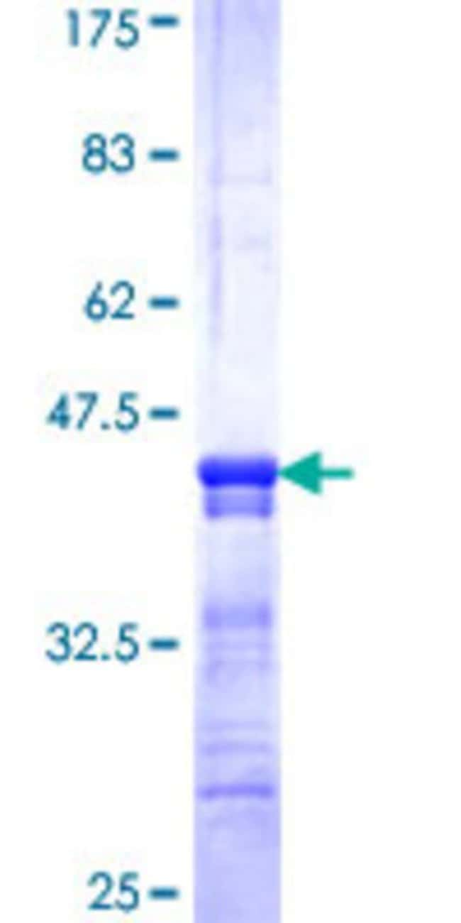 Abnova™Human SLC22A4 Partial ORF (NP_003050, 43 a.a. - 141 a.a.) Recombinant Protein with GST-tag at N-terminal 10μg Abnova™Human SLC22A4 Partial ORF (NP_003050, 43 a.a. - 141 a.a.) Recombinant Protein with GST-tag at N-terminal