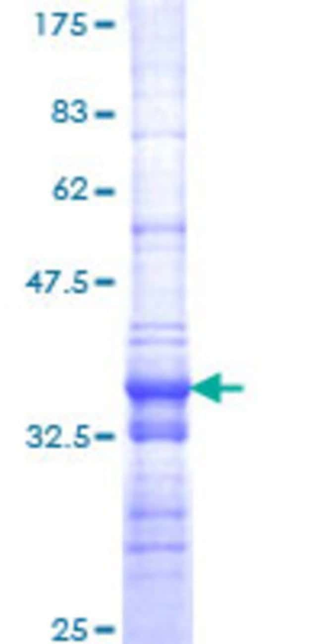 Abnova™Human SMARCA2 Partial ORF (NP_003061, 659 a.a. - 735 a.a.) Recombinant Protein with GST-tag at N-terminal 10μg Abnova™Human SMARCA2 Partial ORF (NP_003061, 659 a.a. - 735 a.a.) Recombinant Protein with GST-tag at N-terminal