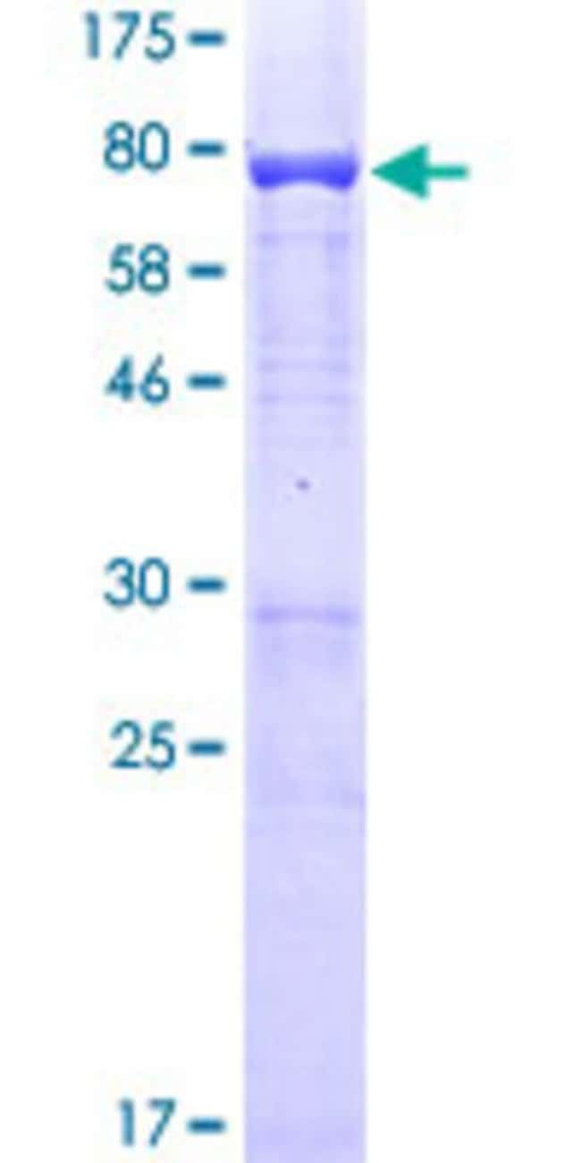 Abnova™Human SMARCE1 Full-length ORF (AAH07082.1, 1 a.a. - 411 a.a.) Recombinant Protein with GST-tag at N-terminal 10μg Abnova™Human SMARCE1 Full-length ORF (AAH07082.1, 1 a.a. - 411 a.a.) Recombinant Protein with GST-tag at N-terminal