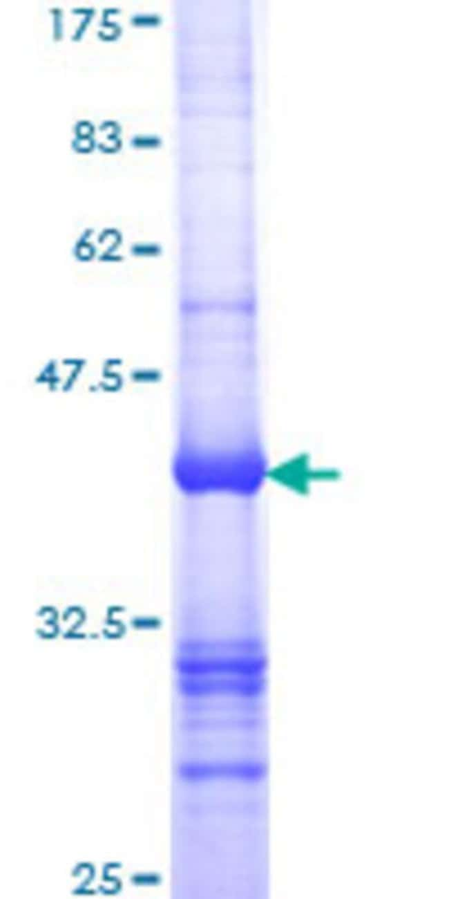 Abnova™Human SMN2 Partial ORF (NP_059107, 191 a.a. - 294 a.a.) Recombinant Protein with GST-tag at N-terminal 10μg Abnova™Human SMN2 Partial ORF (NP_059107, 191 a.a. - 294 a.a.) Recombinant Protein with GST-tag at N-terminal