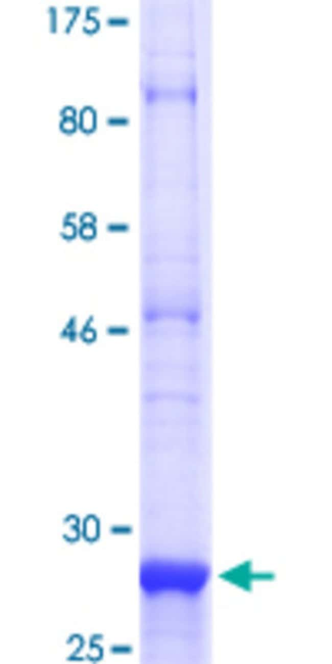 Abnova™Human SMO Partial ORF (NP_005622.1, 461 a.a. - 519 a.a.) Recombinant Protein with GST-tag at N-terminal 10μg Abnova™Human SMO Partial ORF (NP_005622.1, 461 a.a. - 519 a.a.) Recombinant Protein with GST-tag at N-terminal