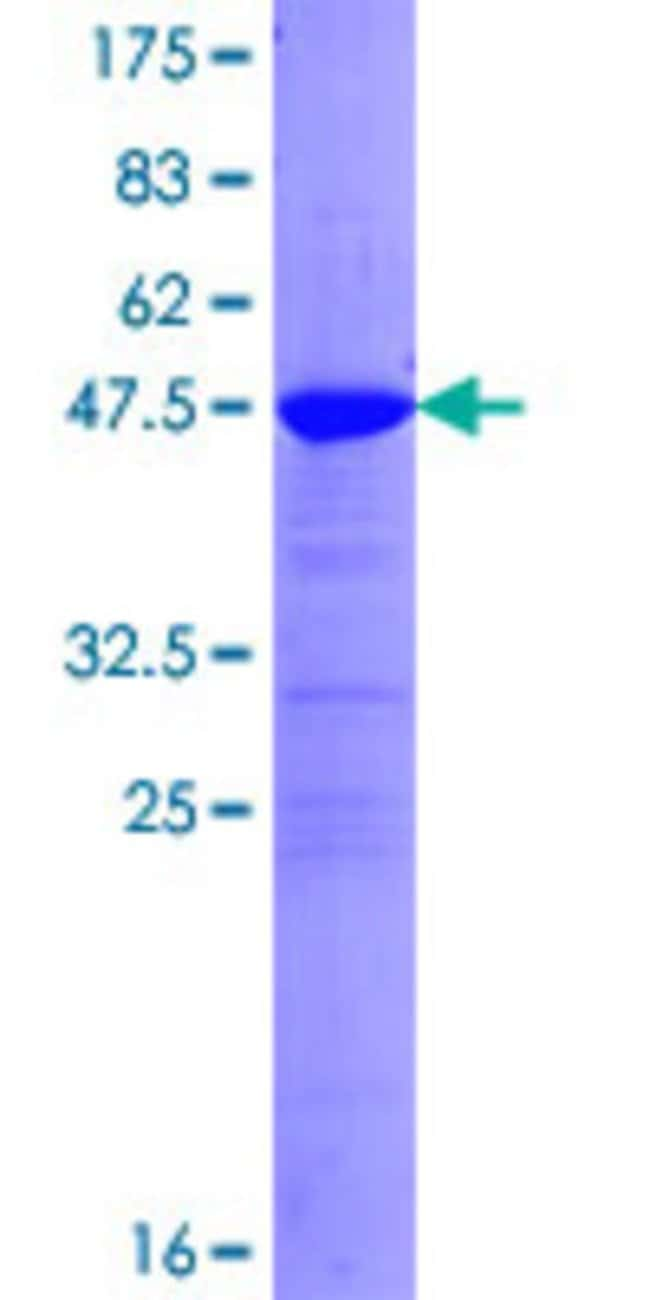 Abnova™ Human SNAP25 Full-length ORF (NP_003072.2, 1 a.a. - 206 a.a.) Recombinant Protein with GST-tag at N-terminal 10μg Abnova™ Human SNAP25 Full-length ORF (NP_003072.2, 1 a.a. - 206 a.a.) Recombinant Protein with GST-tag at N-terminal