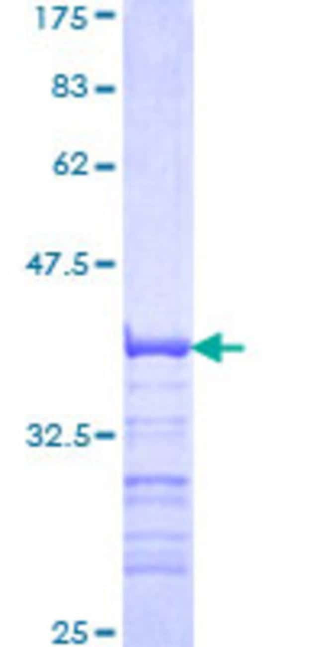 Abnova™Human SNAPC2 Partial ORF (NP_003074, 16 a.a. - 114 a.a.) Recombinant Protein with GST-tag at N-terminal 25μg Abnova™Human SNAPC2 Partial ORF (NP_003074, 16 a.a. - 114 a.a.) Recombinant Protein with GST-tag at N-terminal