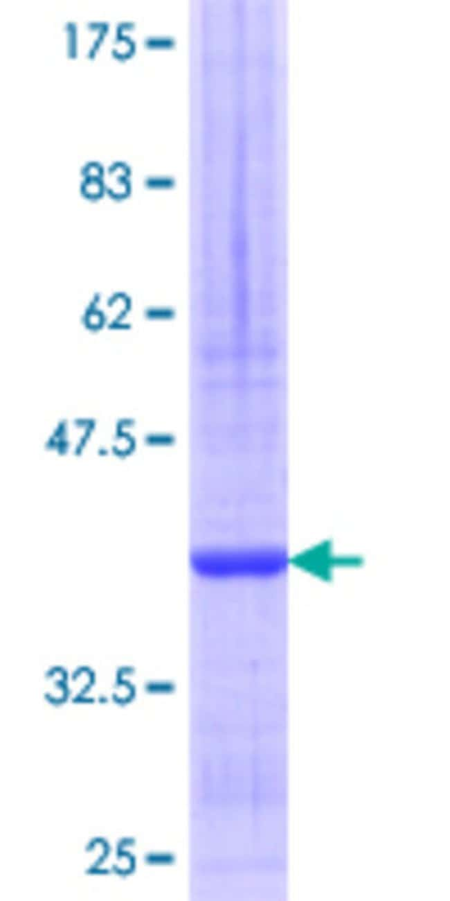 Abnova™Human SNTB2 Partial ORF (NP_006741.1, 116 a.a. - 210 a.a.) Recombinant Protein with GST-tag at N-terminal 10μg Abnova™Human SNTB2 Partial ORF (NP_006741.1, 116 a.a. - 210 a.a.) Recombinant Protein with GST-tag at N-terminal