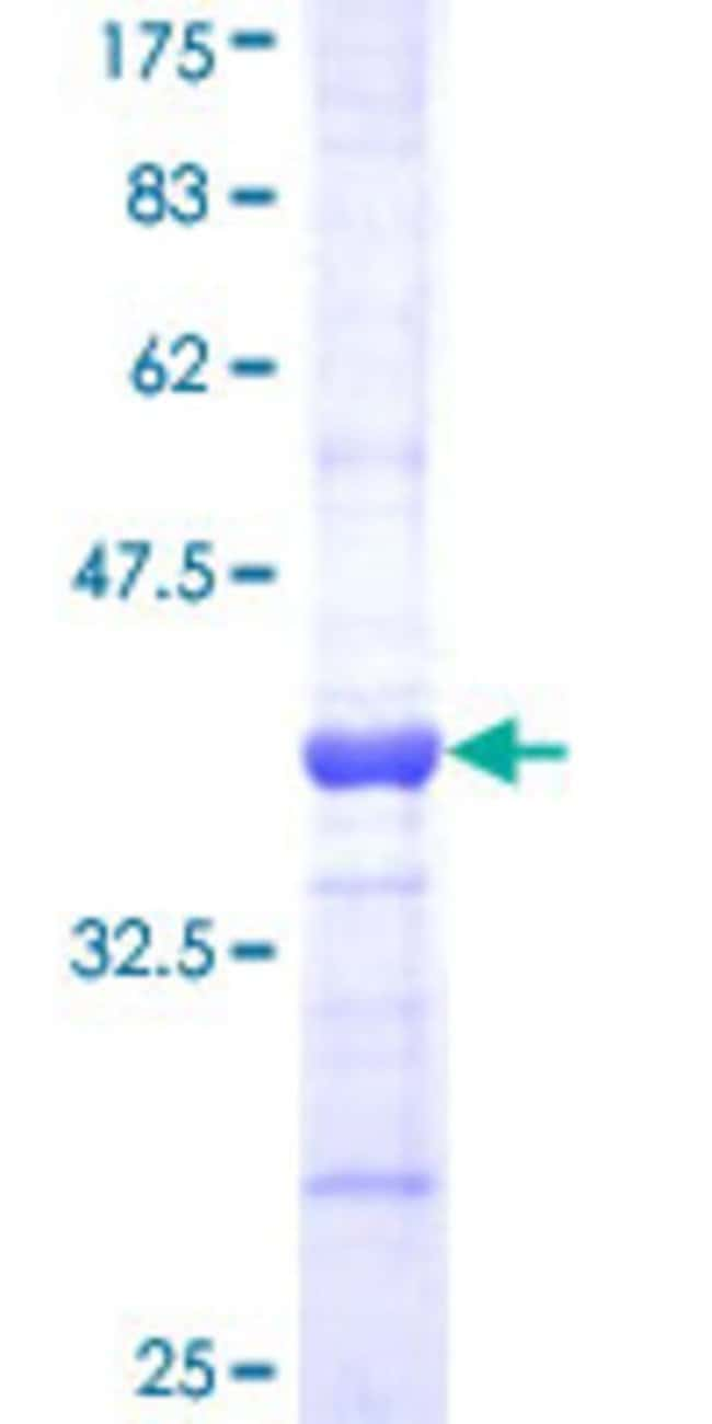 Abnova™Human SOD3 Partial ORF (AAH14418, 26 a.a. - 125 a.a.) Recombinant Protein with GST-tag at N-terminal 10μg Abnova™Human SOD3 Partial ORF (AAH14418, 26 a.a. - 125 a.a.) Recombinant Protein with GST-tag at N-terminal