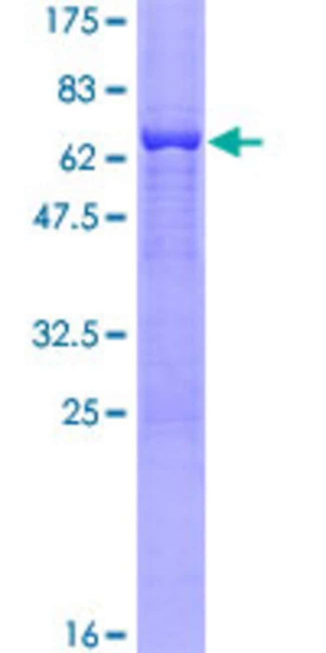 Abnova™Human SORD Full-length ORF (NP_003095.1, 1 a.a. - 357 a.a.) Recombinant Protein with GST-tag at N-terminal 25μg Abnova™Human SORD Full-length ORF (NP_003095.1, 1 a.a. - 357 a.a.) Recombinant Protein with GST-tag at N-terminal