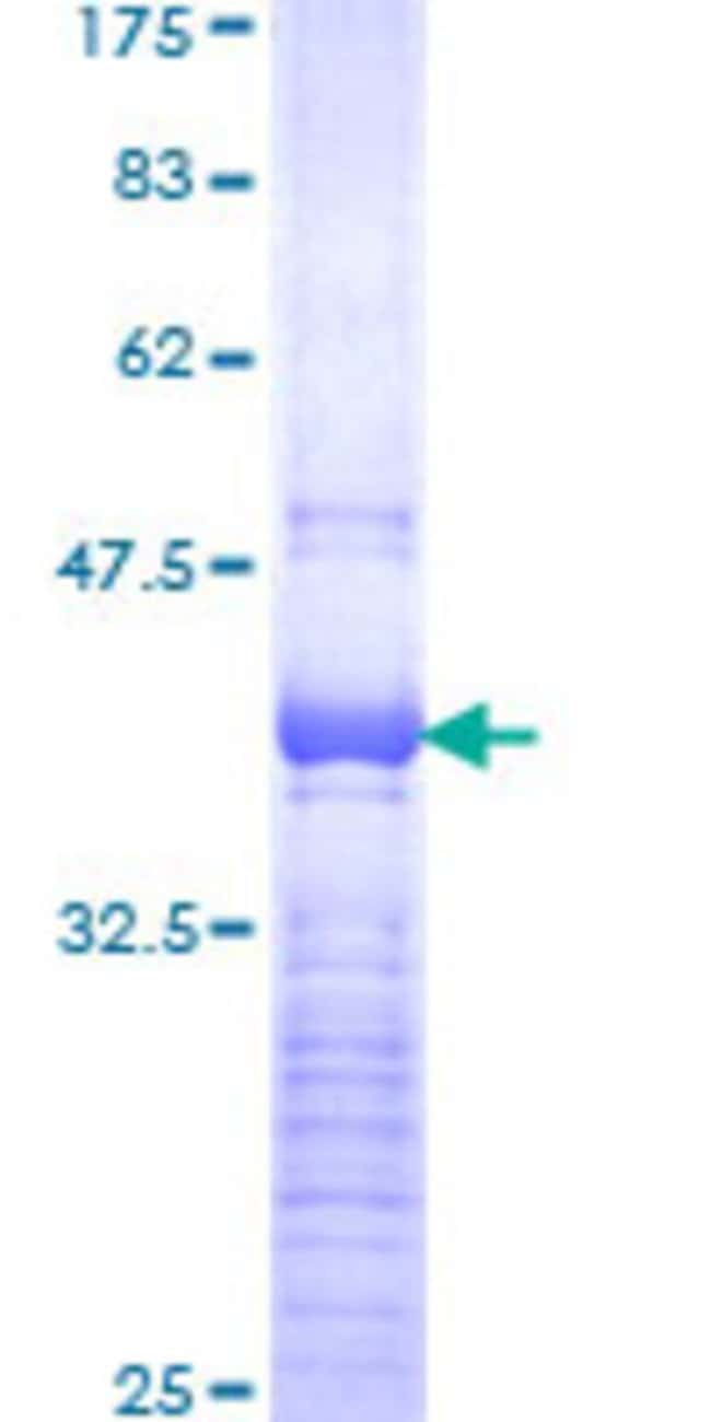 Abnova™Human SOX4 Partial ORF (NP_003098, 45 a.a. - 136 a.a.) Recombinant Protein with GST-tag at N-terminal 10μg Abnova™Human SOX4 Partial ORF (NP_003098, 45 a.a. - 136 a.a.) Recombinant Protein with GST-tag at N-terminal