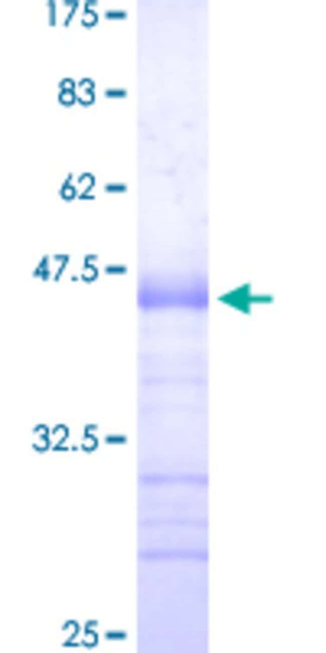 Abnova™Human SP3 Partial ORF (NP_003102.1, 516 a.a. - 615 a.a.) Recombinant Protein with GST-tag at N-terminal 25μg Abnova™Human SP3 Partial ORF (NP_003102.1, 516 a.a. - 615 a.a.) Recombinant Protein with GST-tag at N-terminal
