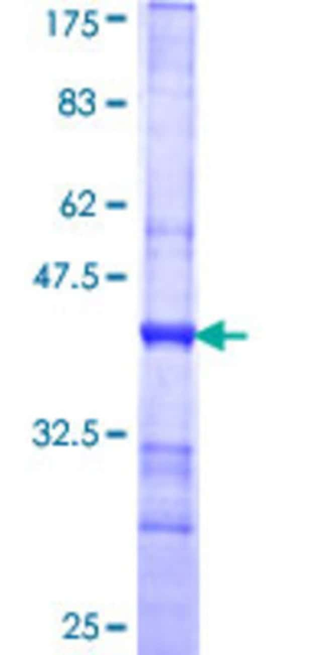 Abnova™Human SPAG4 Partial ORF (NP_003107, 221 a.a. - 330 a.a.) Recombinant Protein with GST-tag at N-terminal 25μg Abnova™Human SPAG4 Partial ORF (NP_003107, 221 a.a. - 330 a.a.) Recombinant Protein with GST-tag at N-terminal