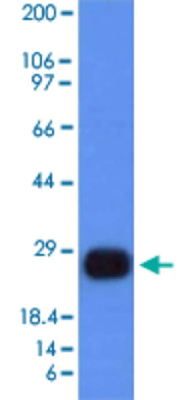 HLA-DRB1 Mouse anti-Human, Clone: HLA-DRB/1067, Abnova 100μg; Unlabeled:Antibodies