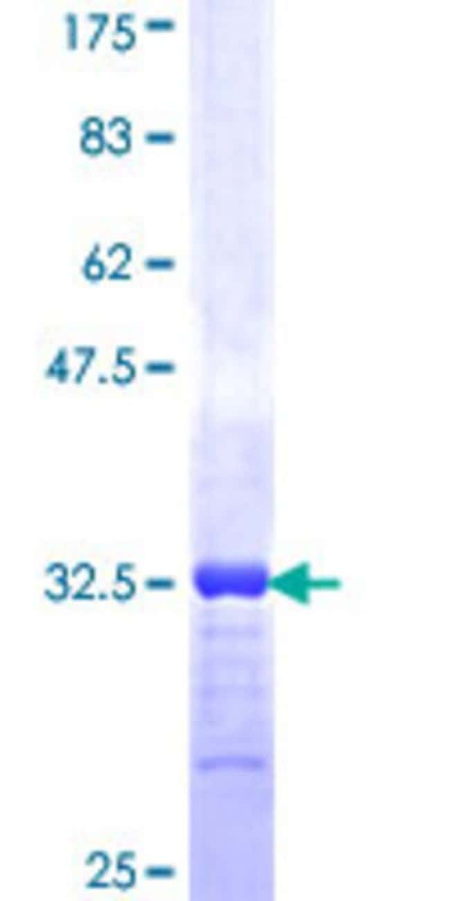 Abnova™Human SPTBN2 Partial ORF (NP_008877, 643 a.a. - 720 a.a.) Recombinant Protein with GST-tag at N-terminal 25μg Abnova™Human SPTBN2 Partial ORF (NP_008877, 643 a.a. - 720 a.a.) Recombinant Protein with GST-tag at N-terminal