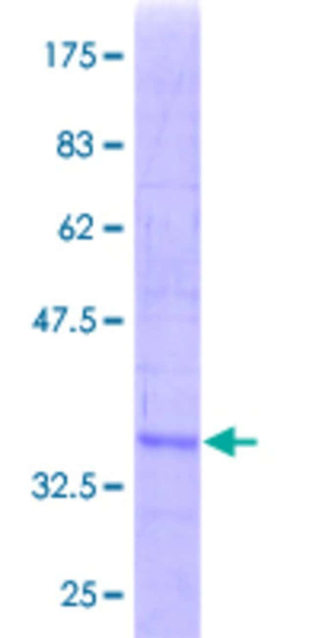 Abnova™Human SRM Partial ORF (AAH00309, 203 a.a. - 301 a.a.) Recombinant Protein with GST-tag at N-terminal 10μg Abnova™Human SRM Partial ORF (AAH00309, 203 a.a. - 301 a.a.) Recombinant Protein with GST-tag at N-terminal