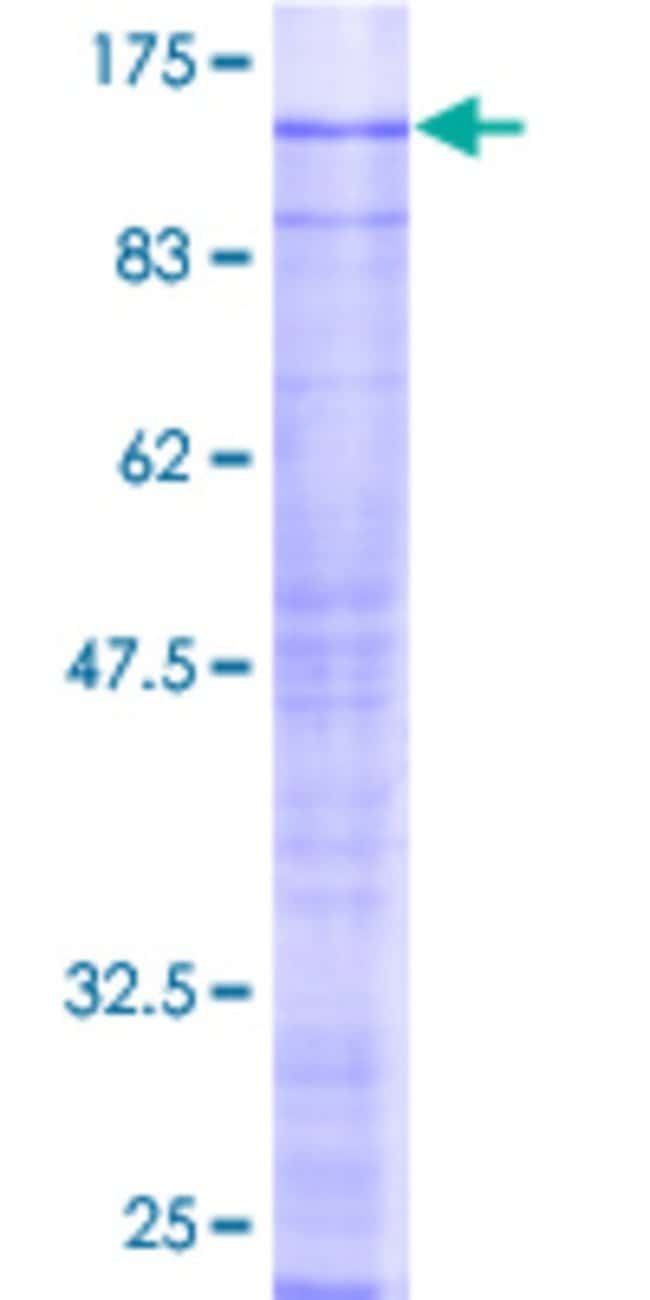 Abnova™Human SRPK2 Full-length ORF (AAH35214, 1 a.a. - 688 a.a.) Recombinant Protein with GST-tag at N-terminal 10μg Abnova™Human SRPK2 Full-length ORF (AAH35214, 1 a.a. - 688 a.a.) Recombinant Protein with GST-tag at N-terminal
