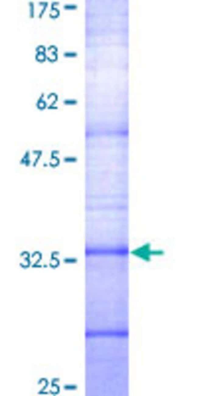 Abnova™Human SSTR2 Partial ORF (AAH19610, 1 a.a. - 60 a.a.) Recombinant Protein with GST-tag at N-terminal 25μg Abnova™Human SSTR2 Partial ORF (AAH19610, 1 a.a. - 60 a.a.) Recombinant Protein with GST-tag at N-terminal